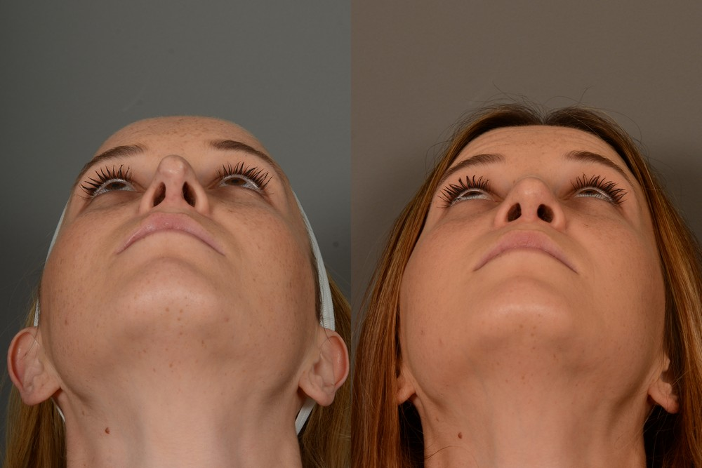 Revision nose surgery patient