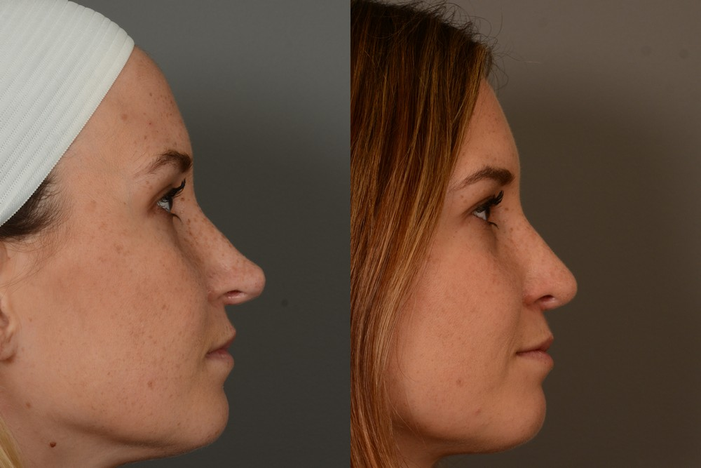 Profile of revision rhinoplasty patient