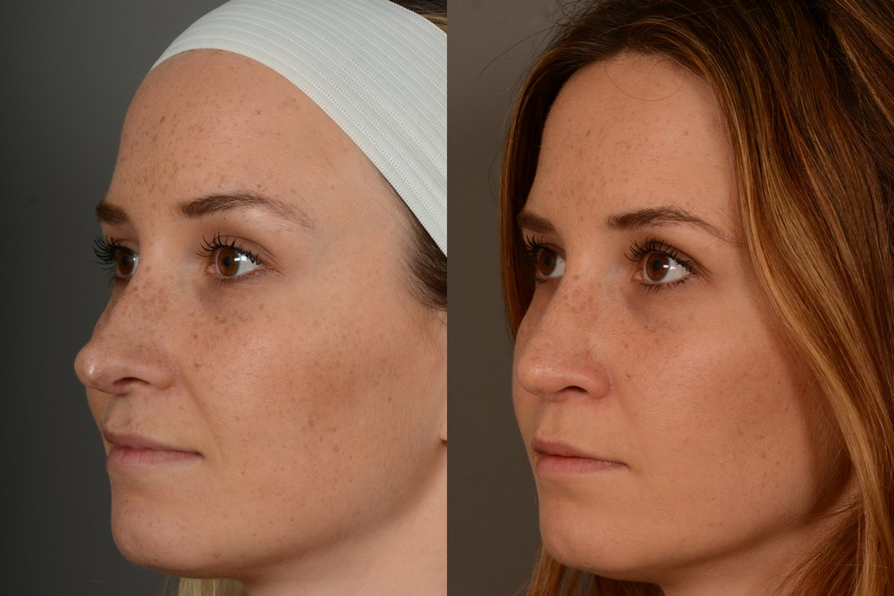 Revision rhinoplasty in San Francisco
