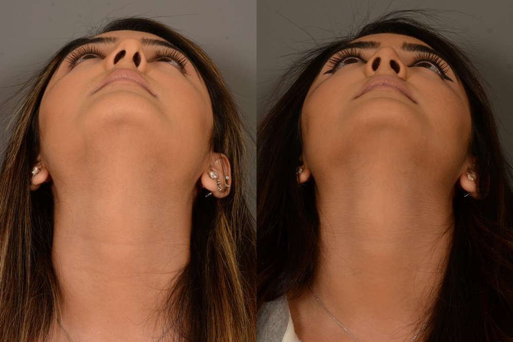 Before & after septoplasty surgery