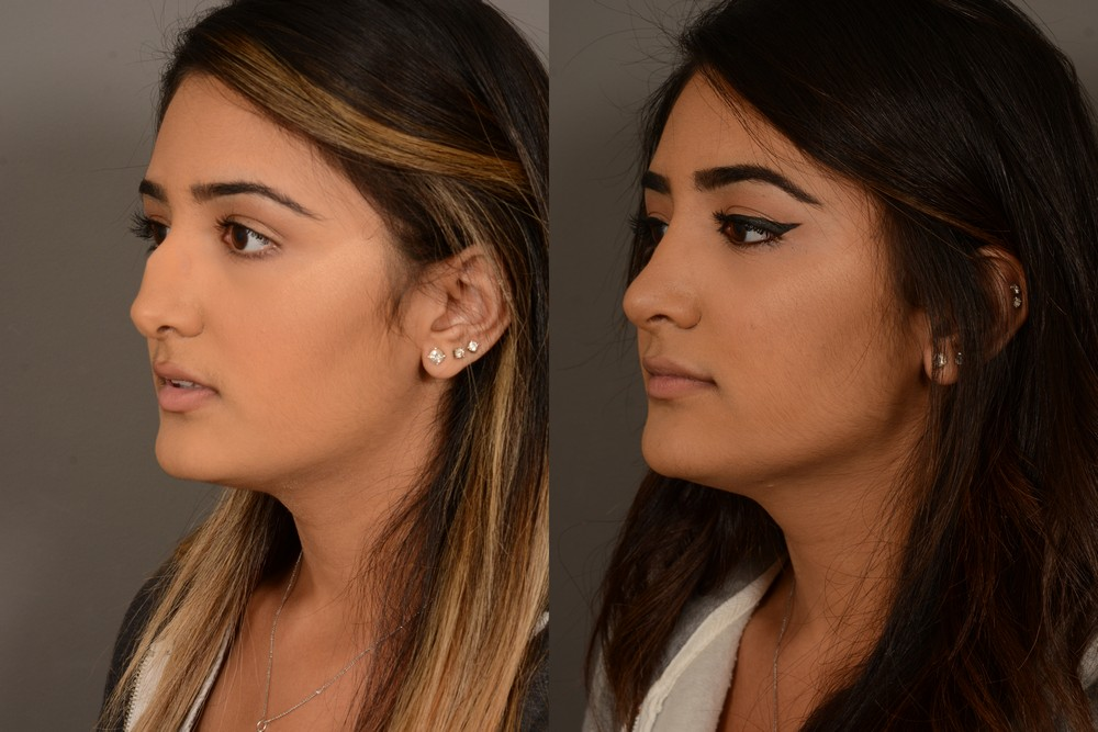 San Francisco hybrid rhinoplasty