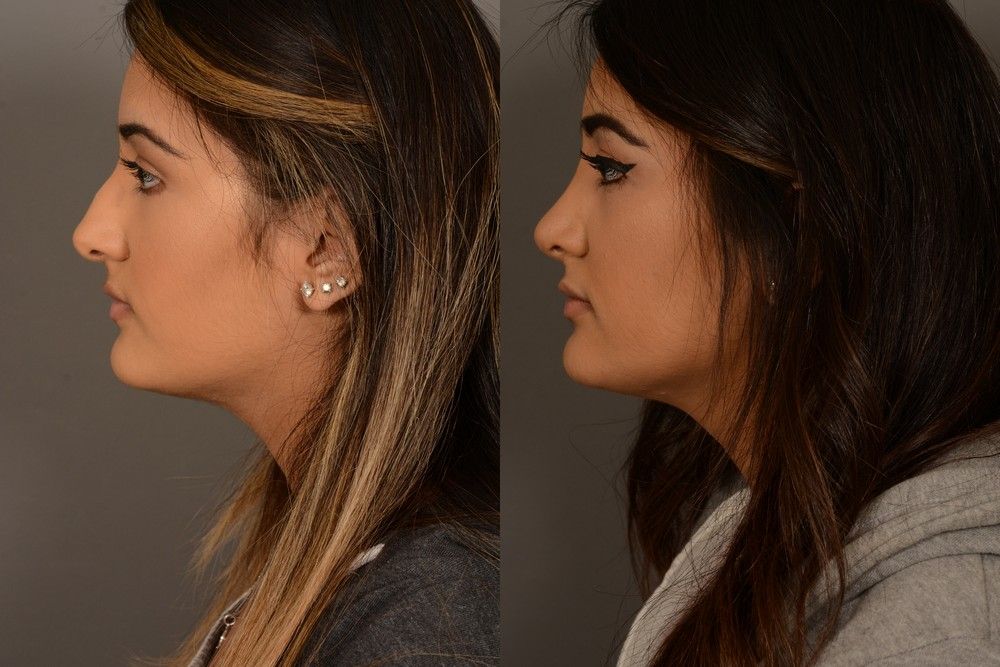 Profile of hybrid rhinoplasty patient