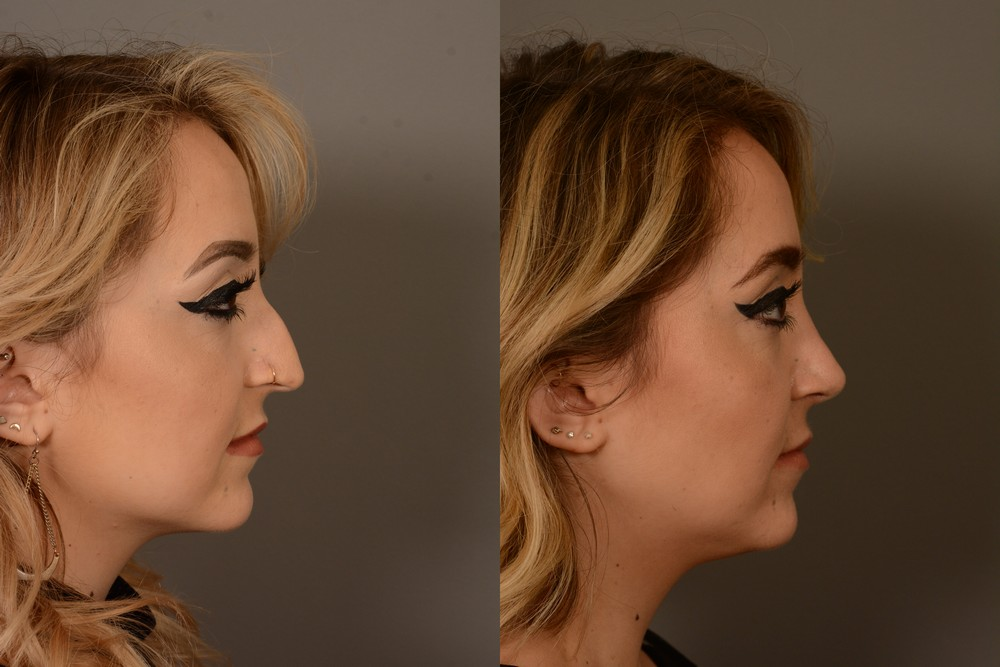 Before & after rhinoplasty in San Francisco