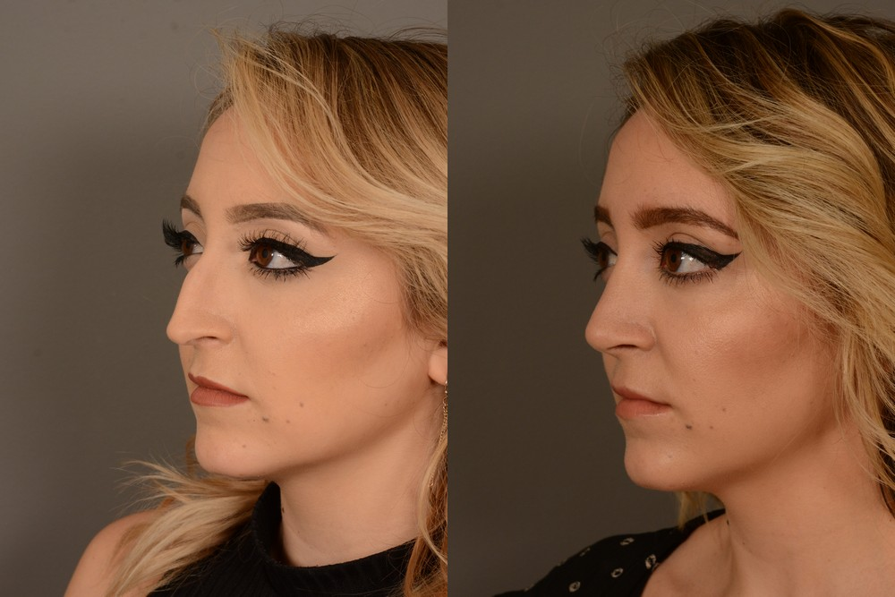 San Francisco cosmetic rhinoplasty