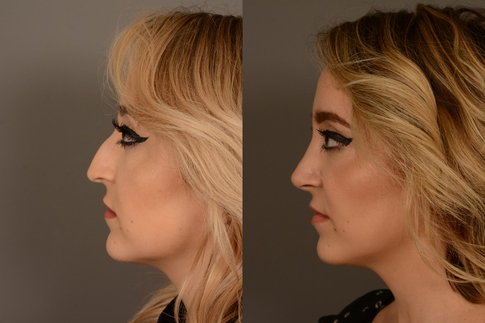 Cosmetic nose surgery in San Francisco