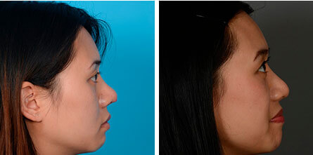 Profile of Asian rhinoplasty patient