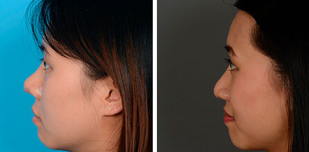 Before & after Asian rhinoplasty