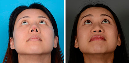 Asian rhinoplasty in San Francisco