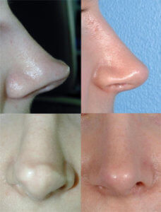 Noses after revision rhinoplasty