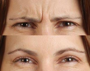 Botox & Dysport treatment in San Francisco