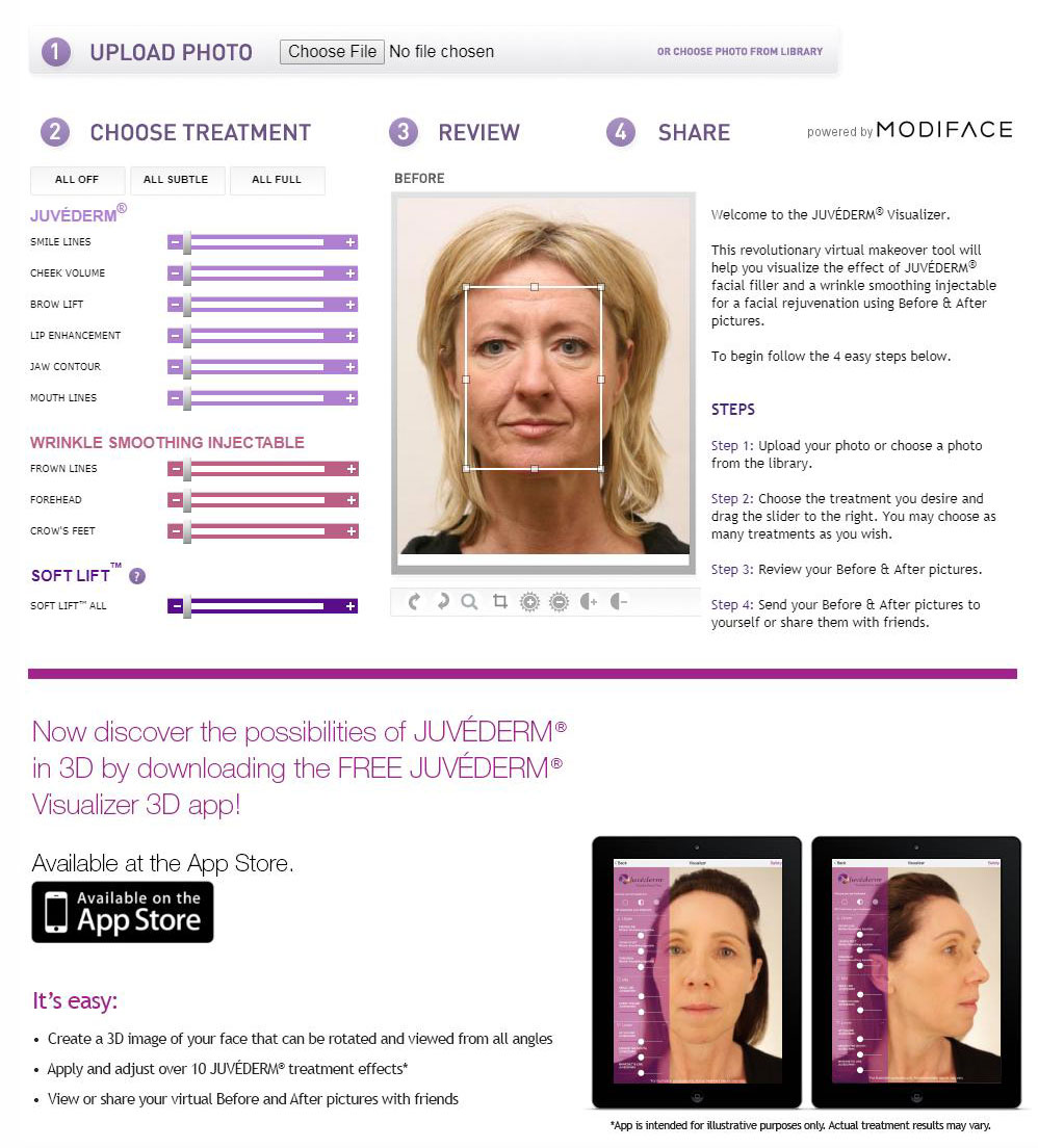 Juvederm 3D Visualizer in San Francisco