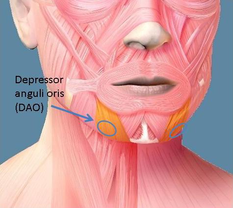 Depressor Anguli Oris diagram
