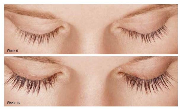 Latisse eyelash treatment in San Francisco