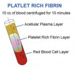 What is Platelet Rich Fibrin?