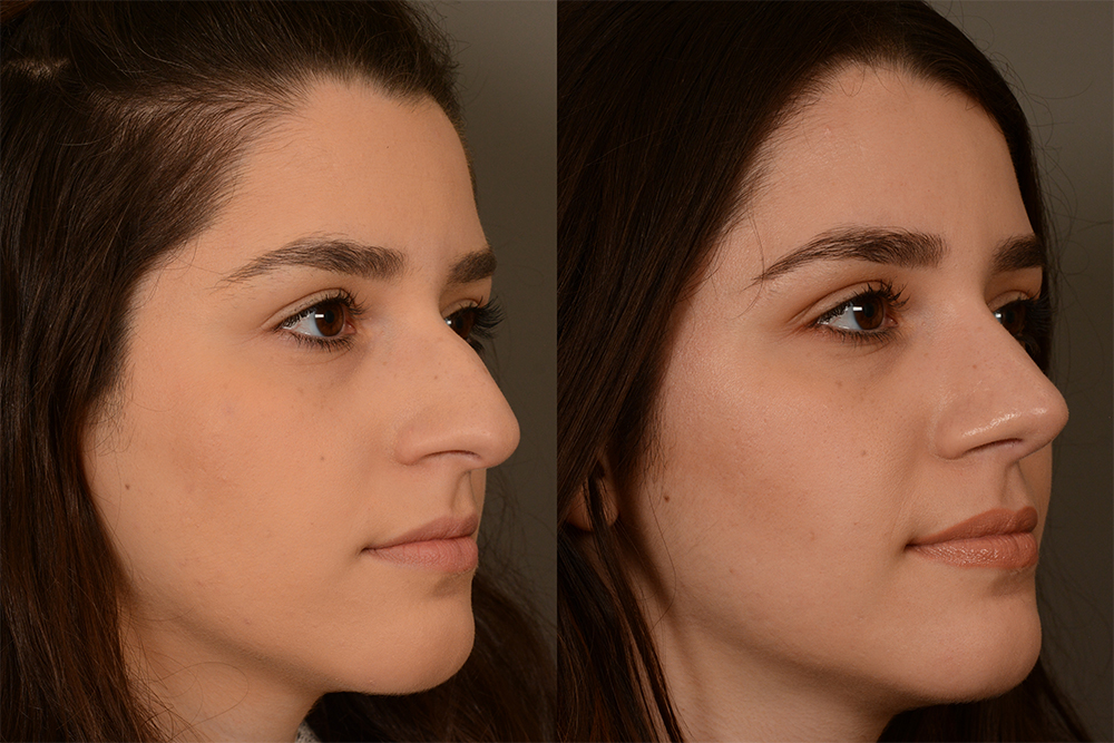 Cosmetic-Rhinoplasty-CASE-4-(1)