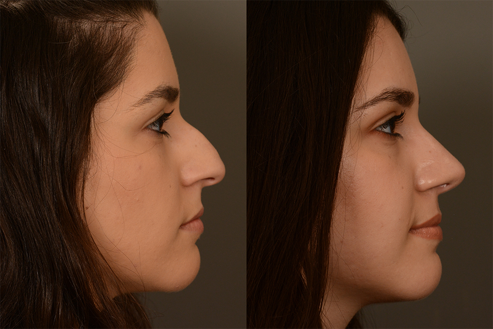 Cosmetic-Rhinoplasty-CASE-4-(2)