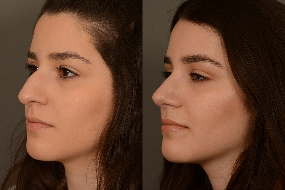 Cosmetic-Rhinoplasty-CASE-4-(3)