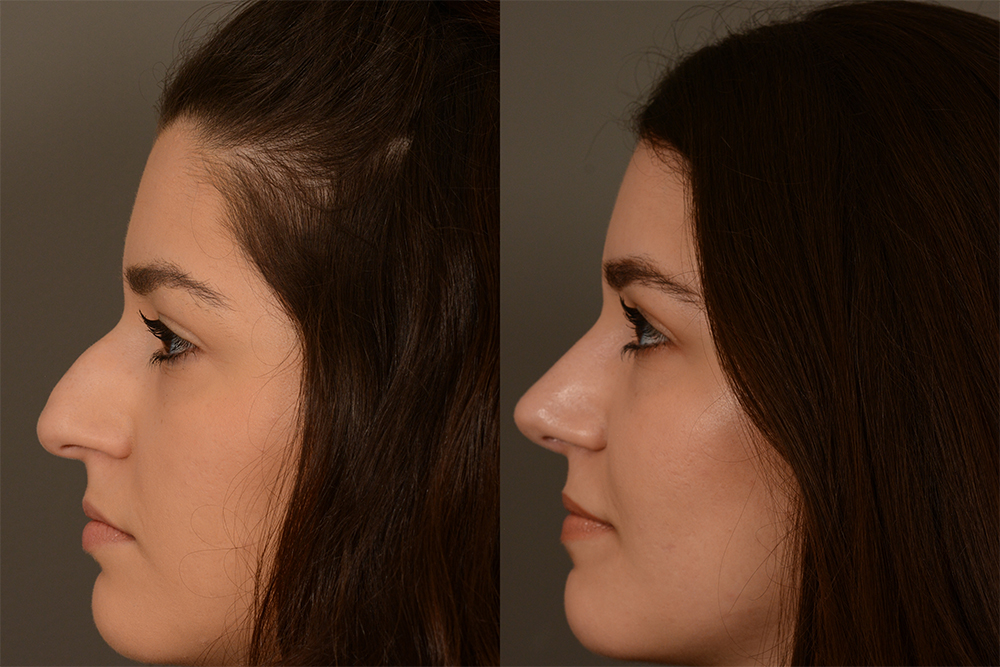 Cosmetic-Rhinoplasty-CASE-4-(4)