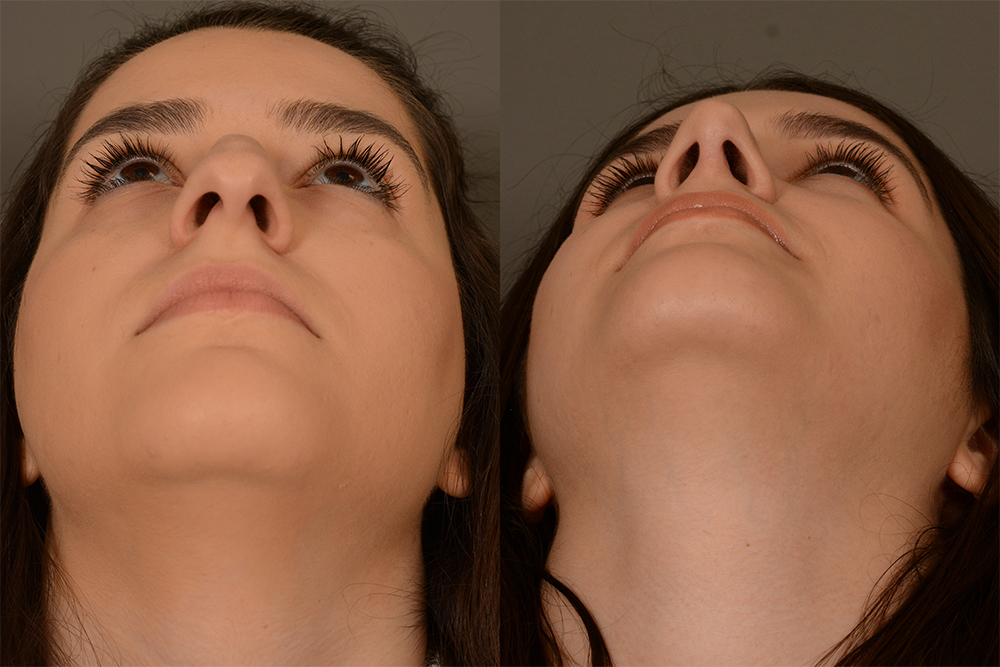 Cosmetic-Rhinoplasty-CASE-4-(7)