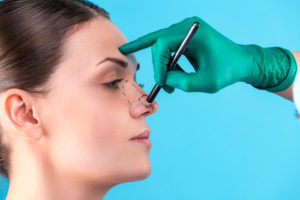 Scar tissue in rhinoplasty: some is normal, a lot is not