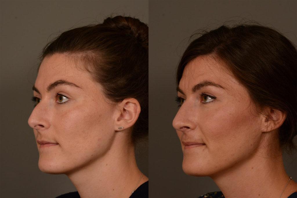 hr-patient-31-oblique-left